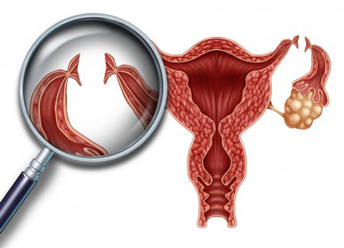 is tubal ligation right for you